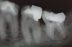 View of teeth Stock Photo