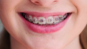 View of teeth with dental brace. Close up of teenage girl`s teeth with dental brace stock video footage