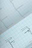Vikt pappers- bakgrund för ECG diagram fotografering för bildbyråer