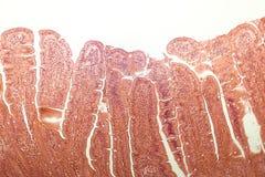 Villi dell'intestino tenue Immagini Stock