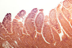 Villi dell'intestino tenue Immagini Stock Libere da Diritti