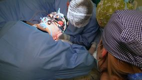 VINNITSA, ΟΥΚΡΑΝΙΑ - το Φεβρουάριο του 2018: Ομάδα χειρούργων στη λειτουργία Χειρουργική επέμβαση καρδιών Εργασίες στη χειρουργικ φιλμ μικρού μήκους