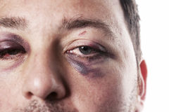 Violence d'accidents de blessure d'oeil au beurre noir d'isolement Image libre de droits