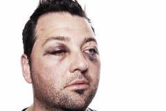 Violencia del accidente con lesiones de ojo morado aislada Imagen de archivo libre de regalías