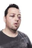 Violenza di infortunio comportante lesioni dell'occhio nero isolata Fotografie Stock Libere da Diritti