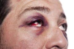 Violenza di infortunio comportante lesioni dell'occhio nero isolata Immagine Stock Libera da Diritti