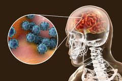 Viral encephalitis, medical concept. Viral meningitis and encephalitis, medical concept, 3D illustration showing brain infection and close-up view of viruses in Stock Photography