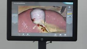 Virtuele medische trainers, simulators, sporen, ledenpoppen en robots - cardiomonitor stock footage