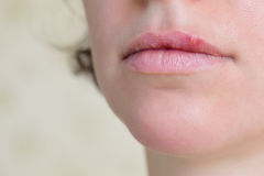 Virus de herpes en los labios femeninos Foto de archivo