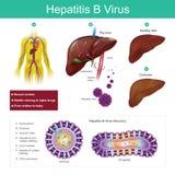 Virus de l'hépatite B Le virus est principalement transmis par l'escroquerie sexuelle Photo libre de droits