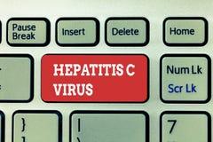 Virus de l'hépatite C d'écriture des textes d'écriture Concept signifiant l'agent infectieux qui cause la maladie d'hépatite vira photos stock