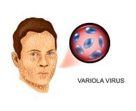Virus de la varicela la derrota de la cara ilustración del vector