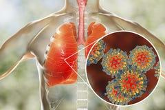Virus del morbillo nell'apparato respiratorio umano illustrazione vettoriale
