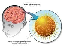 Virus- encefalit stock illustrationer