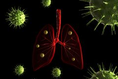Virus infection in lungs Stock Photo