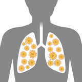 Virus in lung, image illustration Royalty Free Stock Images