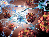 Viruses attacking nerve cells. Concept for Neurologic Diseases, tumors Royalty Free Stock Photos