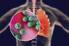 Viruses in human lungs. 3D illustration. Conceptual image for viral pneumonia, flu, MERS-CoV, SARS, Adenoviruses and other respiratory viruses Stock Photo