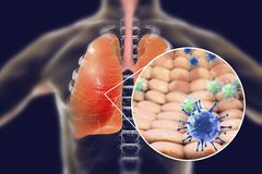 Viruses in human lungs. 3D illustration. Conceptual image for viral pneumonia, flu, MERS-CoV, SARS, Adenoviruses and other respiratory viruses Royalty Free Stock Image