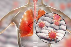 Viruses in human lungs. 3D illustration. Conceptual image for viral pneumonia, flu, MERS-CoV, SARS, Adenoviruses and other respiratory viruses Royalty Free Stock Photo
