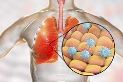 Viruses in human lungs. 3D illustration. Conceptual image for viral pneumonia, flu, MERS-CoV, SARS, Adenoviruses and other respiratory viruses Stock Image