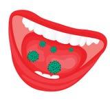 Virussen bacteriële te sterke groei in een mond stock afbeeldingen