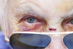 Visage blessé du ` s de femme agée Image stock