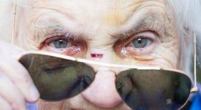 Visage blessé du ` s de femme agée Images stock
