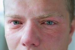 Visage d'homme adulte pleurant avec des yeux bleus images libres de droits