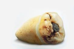 Vishet-tand med amalgammet som påverkas av karies arkivfoton