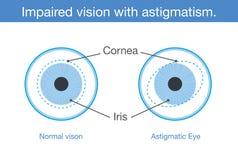Visión normal y visión empeorada con astigmatismo en vista delantera libre illustration
