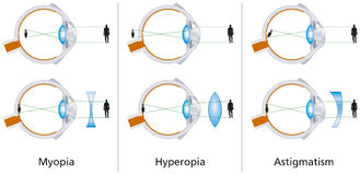 Vision Defects - Myopia, Hyperopia And Astigmatism Royalty Free Stock Photography