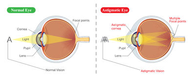Vision of Normal eye and Astigmatic Stock Photography