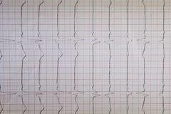 Vista ascendente cercana de un papel del electrocardiograma, gráfico imagen de archivo