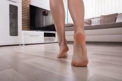 Vista bassa della sezione di un piede sul pavimento caldo immagine stock