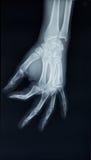 Vista dei raggi x della mano su un fondo nero Immagini Stock