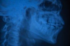 Vista del cráneo de la radiografía de la película del ser humano Foto de archivo libre de regalías