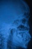 Vista del cráneo de la radiografía de la película del ser humano Fotografía de archivo
