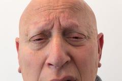 Vista del fronte con dolore ansioso, calva, alopecia, chemioterapia, cancro di fine dell'uomo più anziano, isolato su bianco Fotografia Stock