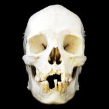 Vista delantera del cráneo humano Fotografía de archivo libre de regalías