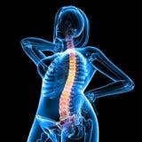 Vista delantera del esqueleto femenino con dolor de espalda Imágenes de archivo libres de regalías