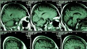 Vista di scheletro di anatomia dei raggi x video d archivio
