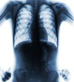 Vista frontale del film di posizione akimbo normale dell'esame radiografico del torace Immagine Stock Libera da Diritti