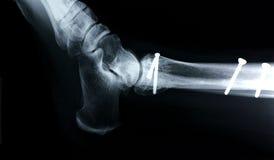 Vista lateral de la radiografía/del tobillo Foto de archivo libre de regalías