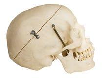 Vista laterale del cranio umano con il percorso di residuo della potatura meccanica Fotografia Stock