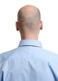 Vista posterior adulta de la cabeza calva del hombre Imagen de archivo