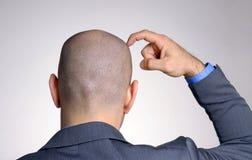 Vista posterior de una cabeza calva fotos de archivo libres de regalías