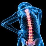 Vista posterior del esqueleto femenino con dolor de espalda Foto de archivo libre de regalías