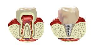 Vista realistica del dente di sezione trasversale umana artificiale dell'impianto royalty illustrazione gratis
