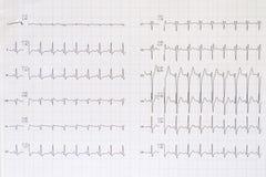 Vista superiore di un elettrocardiogramma completo Fotografie Stock